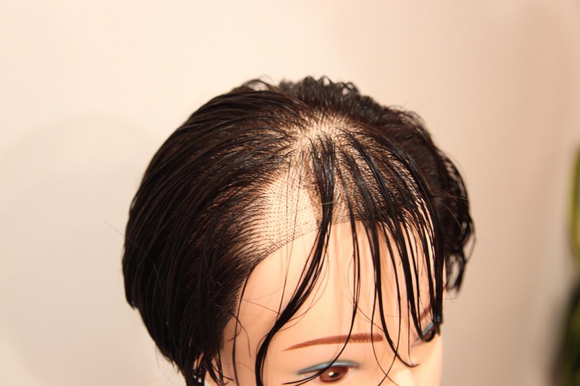 前髪 薄毛 女性