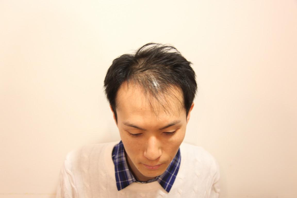 後頭部 薄毛 ヘアスタイル