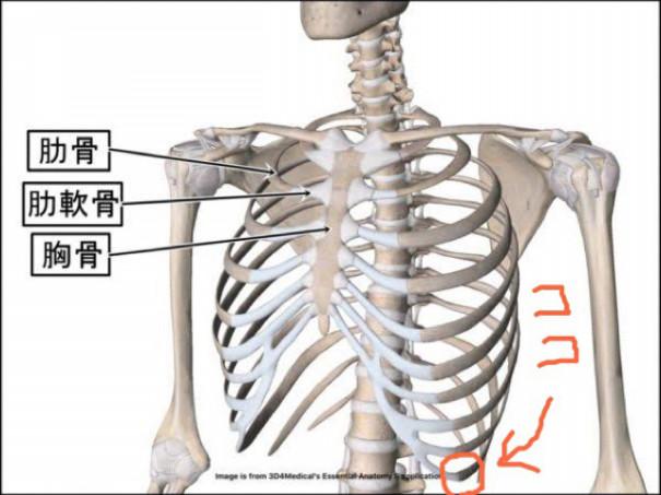 痛い 肋骨
