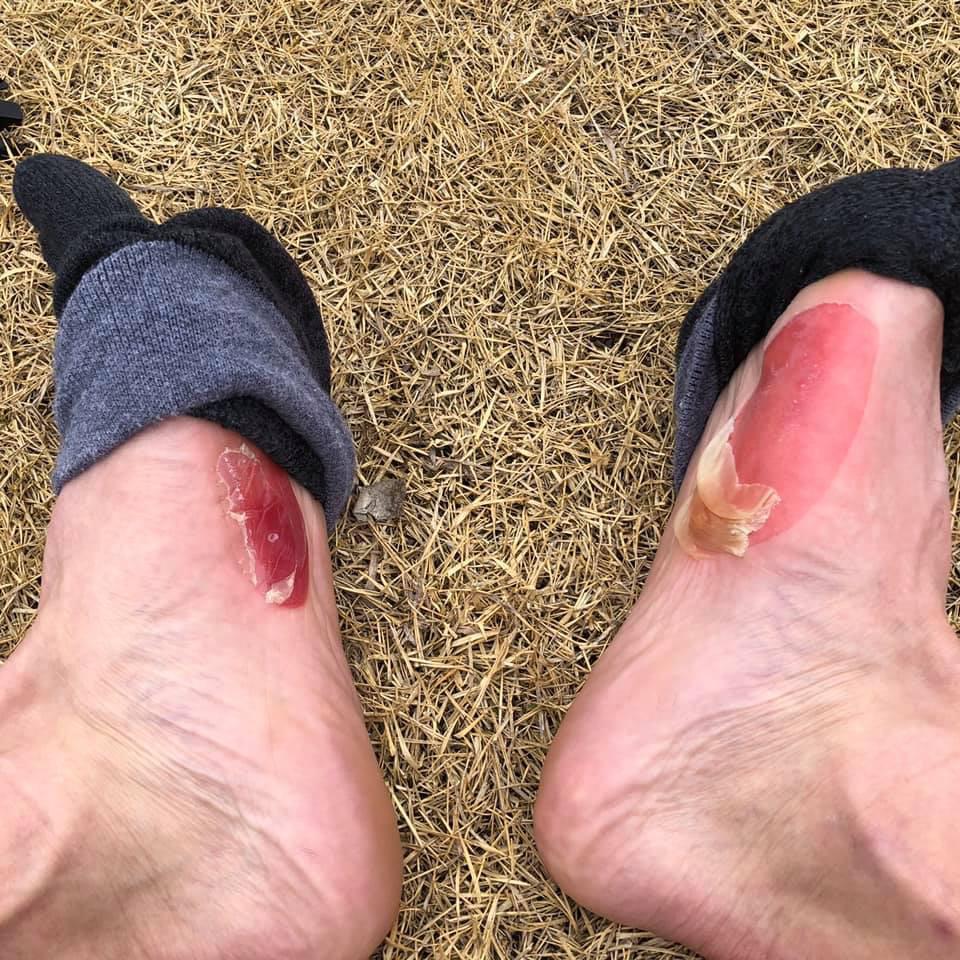 足 の 親指 皮 が むける 足の指の皮がむける原因と対処法6つ 健康な生活を送る手助け...