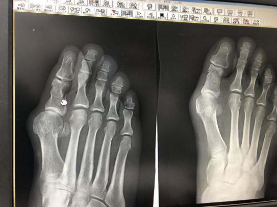 指 骨折 足