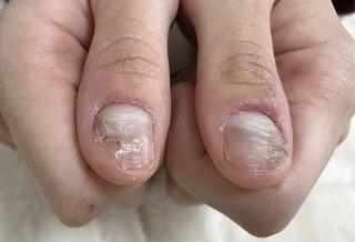爪 でこぼこ