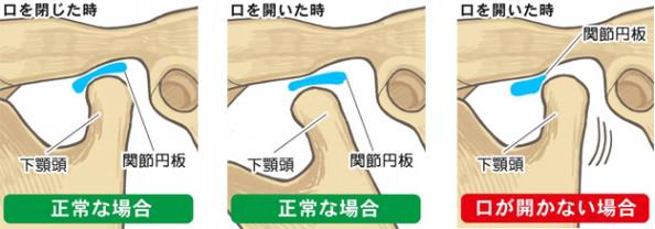 関節 円 板 と は
